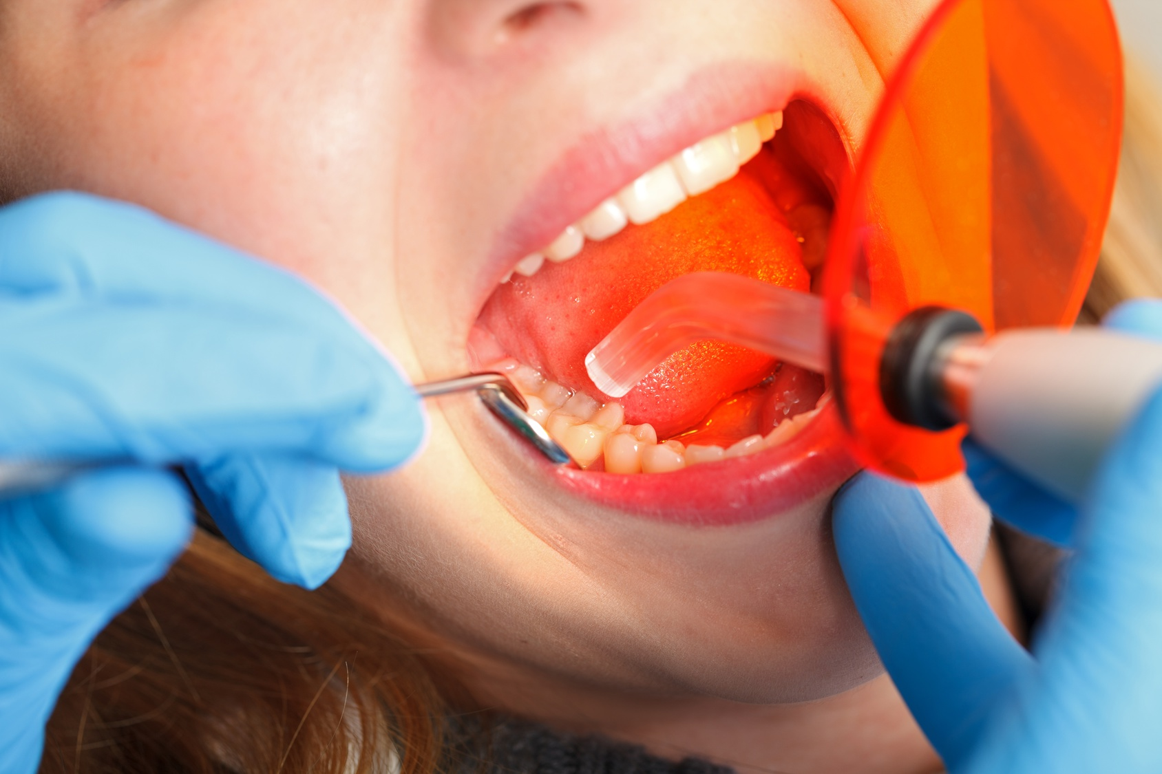 vity by removing the rotten or corroded area and then performs the tooth filling. This procedure is also used to repair broken or cracked teeth, ...